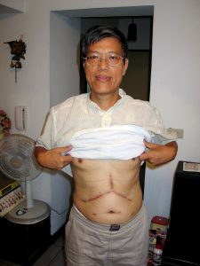 epa03603048 A photo made available on 27 February 2013 and dated 17 September 2005 showing retired Taiwan scientist Chen Ju-chen displaying a scar of liver transplant operation he received in Guangzhou, China, in 2004. Every year, some 200 Taiwanese go to China for an organ transplant due to shortage of donated organs in Taiwan. On 27 February 2013, Taipei Bar Association issued a statement condemning China's harvesting prisoners' organs, and urging Taiwan to enact law to ban Taiwanese from going to China for an organ transplant, thus becoming an accomplice in whay they called China's illegal organ trade. EPA/DAVID CHANG